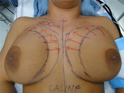 Body modification vagina picture